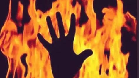 Rape accused out on bail sets woman complainant on fire in Rajasthan