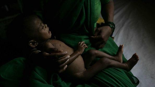 भारत में तेजी से बढ़ रहा है कुपोषण का खतरा