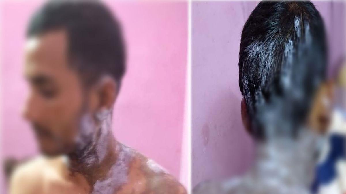 उत्तर प्रदेश: उन्नाव में एकतरफा प्यार में युवती ने लड़के पर फेंका तेजाब, गंभीर हालात में अस्पताल में  भर्ती