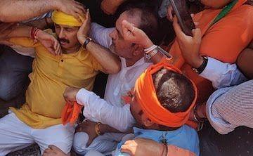 दिल्ली में प्रदर्शन के दौरान घायल हुए बीजेपी सांसद मनोज तिवारी, अस्पताल में कराना पड़ा भर्ती