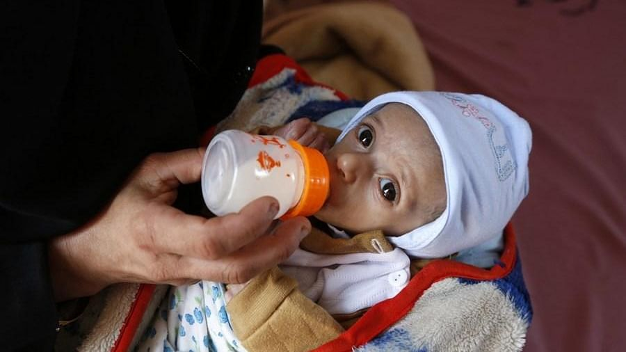 A mother feeding her malnourished child at Al-Sabeen hospital in Sanaa, Yemen.