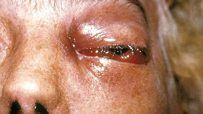 Govt. acts to ramp up availability of Amphotericin B to fight Mucormycosis
