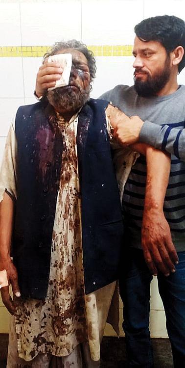 Injuries of those attacked inside Faroqiya Masjid in Brijpuri Puliya.