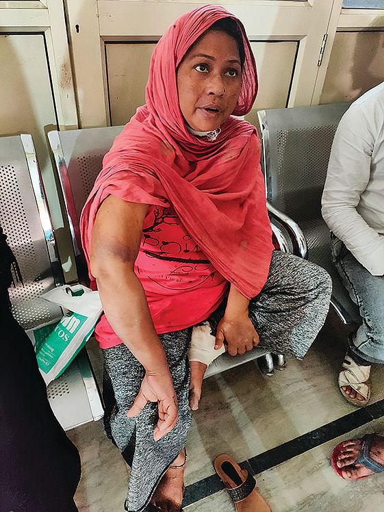 'After multiple blows, he picked up a huge stone and brought it down on my head, knocking me out,' says Rubina.
