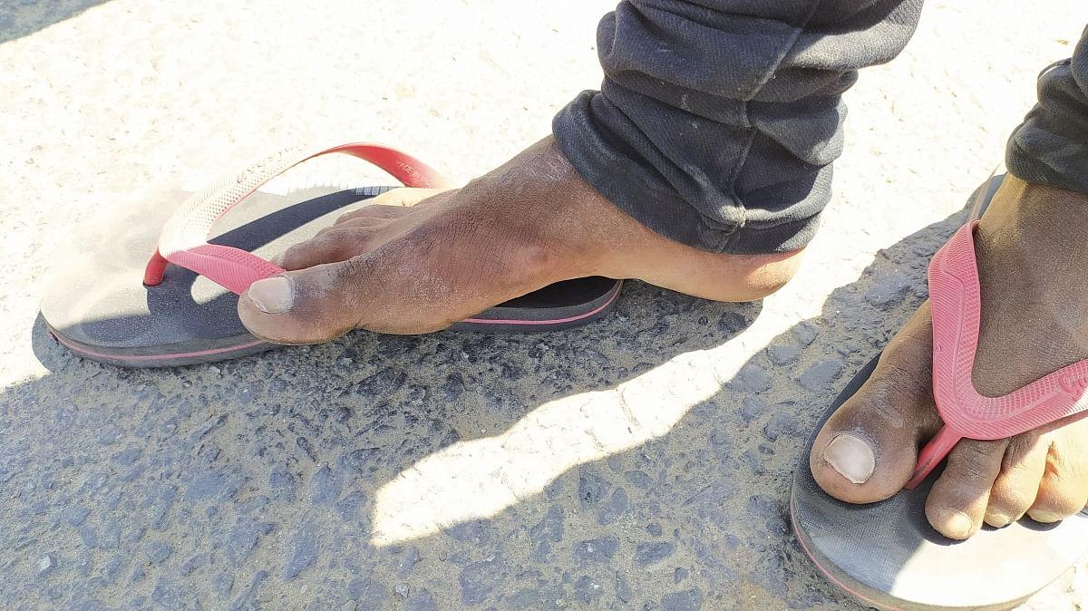 सतीश के पैर में पड़े छाले