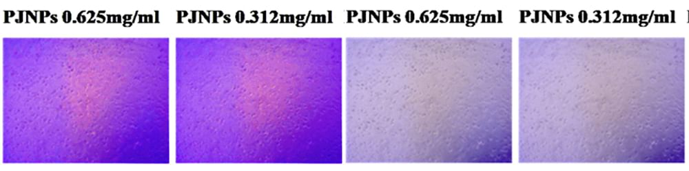 Original and saturated (right) images of cell culture from Patanjali's paper on Anticancer Effect of Putranjiva roxburghii Seed Extract.