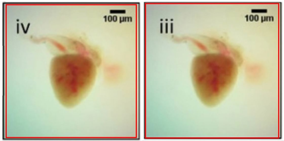 Duplicated images of Zebrafish hearts from Patanjali's paper on the suppression of cardiac hypertrophy via Yogendra Ras.