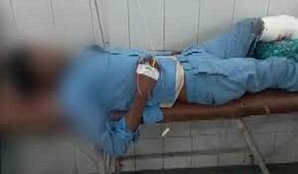 Man's severed leg used as pillow: two doctors suspended