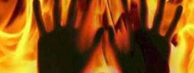 Agra: School girl set ablaze by unidentified men, succumbed to injuries