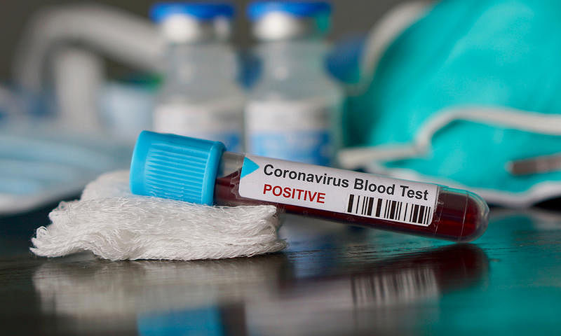 Nine more positive corana cases in Gujarat, total goes up to 53