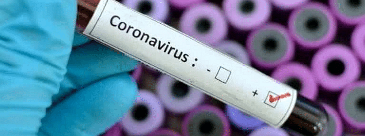 3 persons test positive for Covid 19 Goa