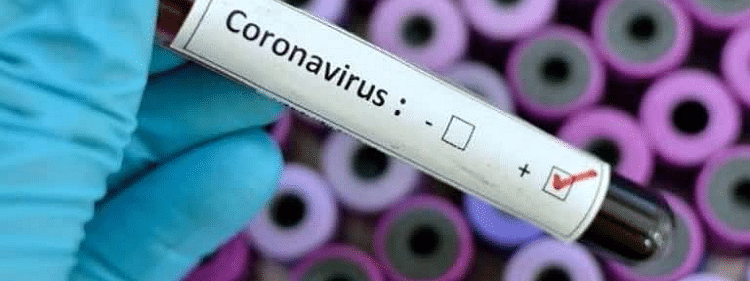 Tanzania's number of confirmed COVID-19 cases rises to 49