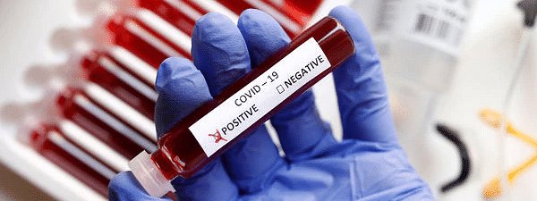 Covid-19: Out of 199 samples 183 turns out to be negative in Belagavi District