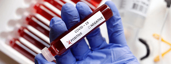 Covid-19 infects over 1,000 in Aurangabad