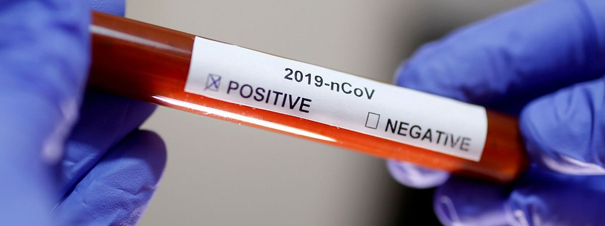 106 new positive coronavirus cases reported in Tamil Nadu today