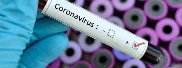 12 more test positive for COVID-19 in UT : Minister