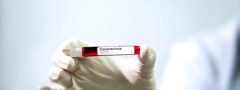 Six of family test COVID-19 positive in Nashik