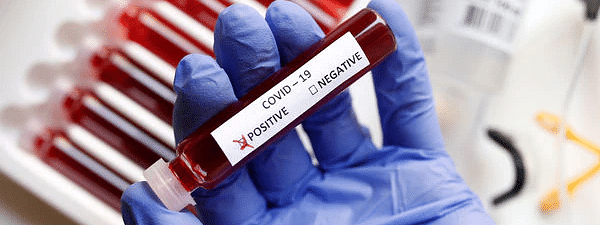 Total corona positive cases in Bihar rise to 38
