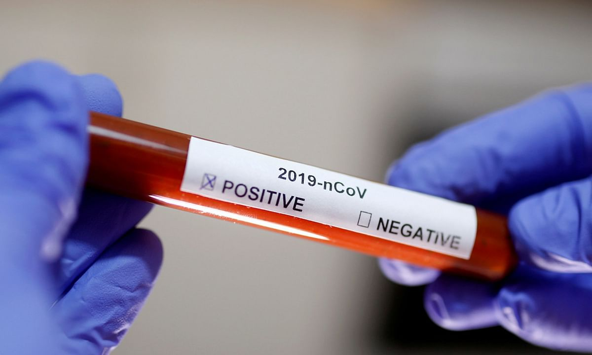 COVID-19 : 60 new positive cases reported in AP, 2 more patients die