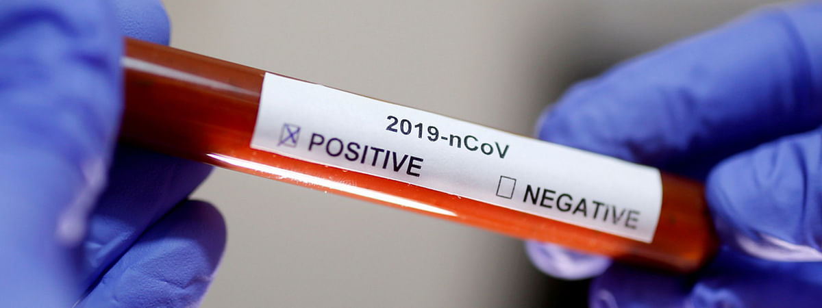 COVID-19 positive cases in Karnataka swell to 191