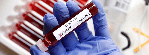 Nine Pune city police personnel found Coronavirus positive, over 100 others quarantined in Pune