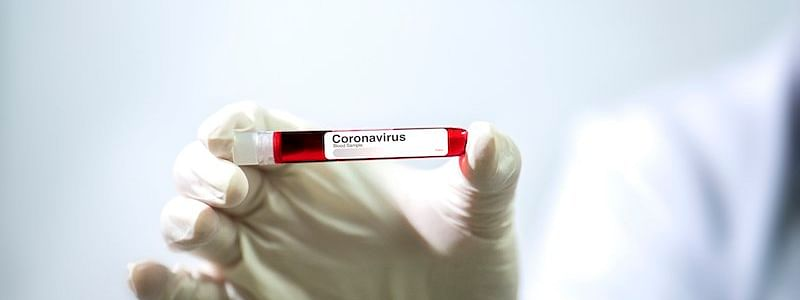 COVID-19: 3 more tested positive, 62 infected in Assam