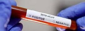 COVID-19: 2 more test positive, tally 125 in UP's Barabanki