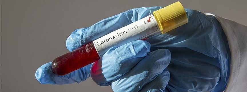 Bihar: 177 new coronavirus cases detected, tally reaches to 5247