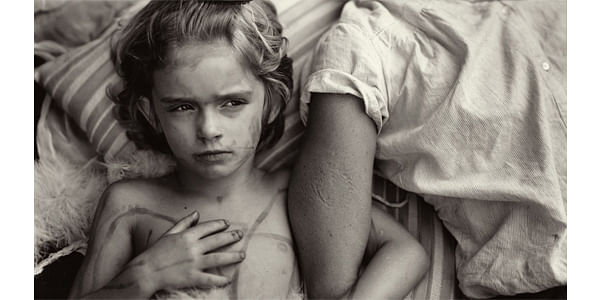 Jessie Bites, 1985.This photograph tells a strong story where the child has bitten the hand of an older person (possibly her sibling), yet still clings on to the hand with a frown on her face. This showcases the temperamental nature of most children when they are young.