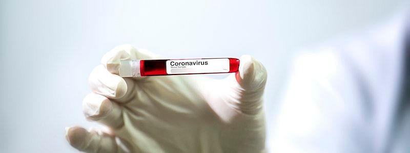COVID-19: Pregnant woman from Kuwait tests positive