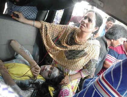 औरंगाबाद में मनचलों ने छात्रा के चेहरे पर फेंका तेजाब