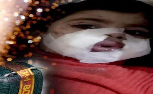 तो क्या मेरठ की 3 साल की बच्ची ने खुद ही अपने मुंह में फोड़ लिया था पटाखा?