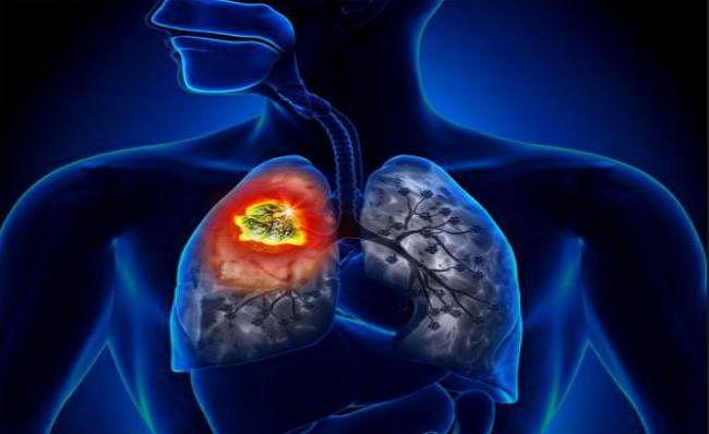 Health Research: धूम्रपान नहीं करनेवाले भी फेफड़े के कैंसर से हैं पीड़ित, जानें वजह...