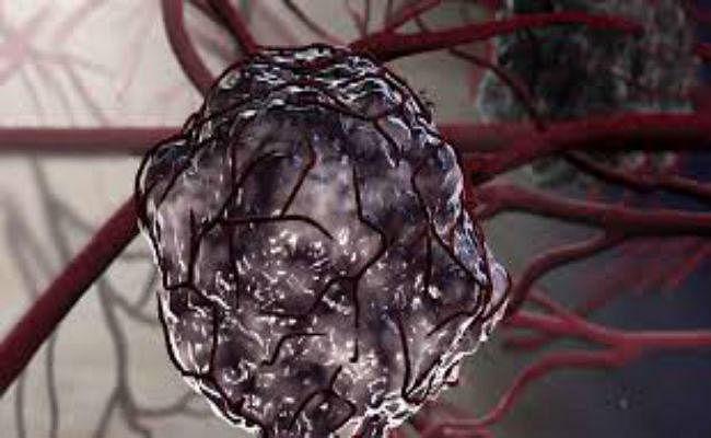 रिसर्चर्स ने आक्रामक ट्यूमर की पहचान के लिए नयी तकनीक विकसित की