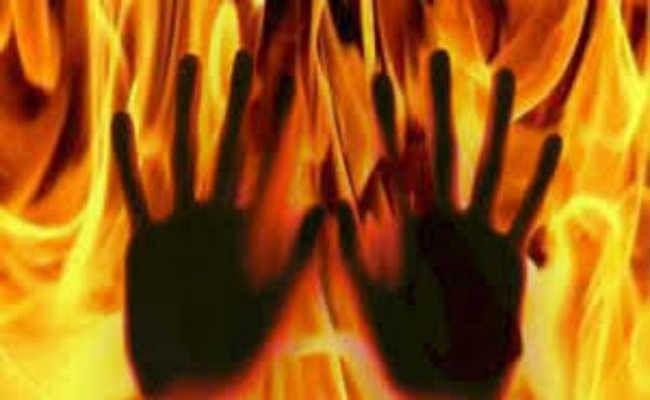 उन्नावः आरोपी को जमानत मिलने से क्षुब्ध बलात्कार पीड़िता ने पुलिस कार्यालय के सामने लगायी आग