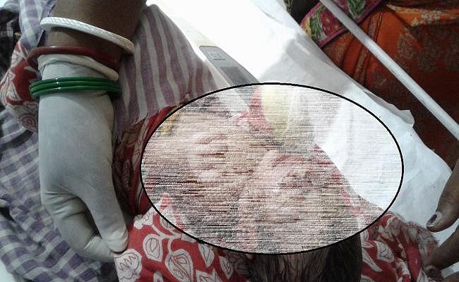 शर्मसार हुई ममता, कूड़ेदान में फेंकी मिली नवजात, नेवले बना रहे थे निवाला