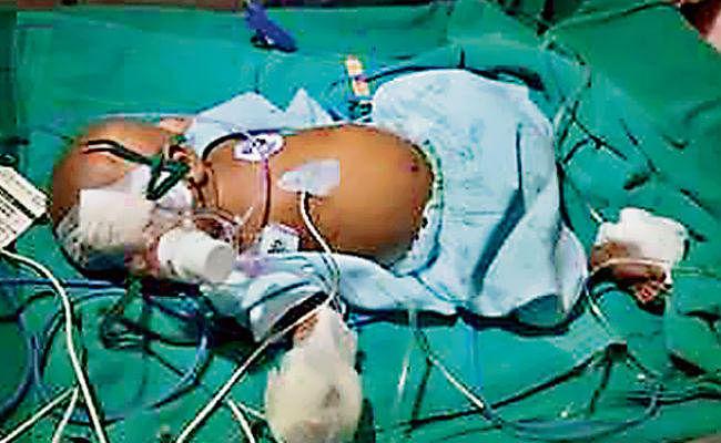 रांची : दो माह के बच्चे की आंखों का हुआ सफल ऑपरेशन