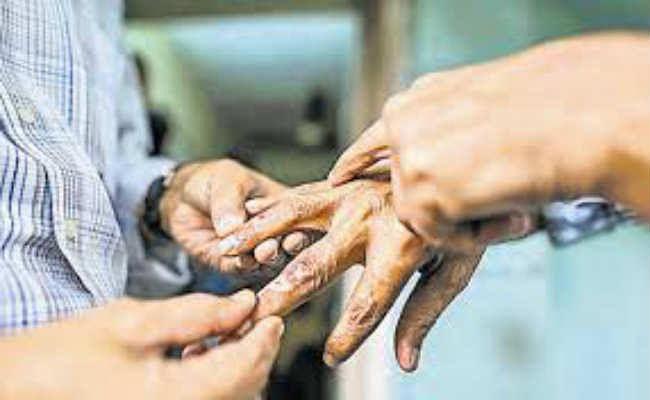 कुष्ठ रोगियों की खोज को 19 से विशेष अभियान