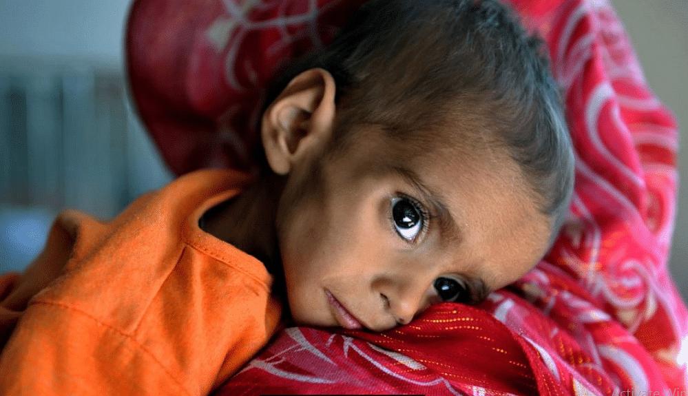 अफ़ग़ानिस्तान में भूख के कारण 10 लाख बच्चे मर सकते है: UN