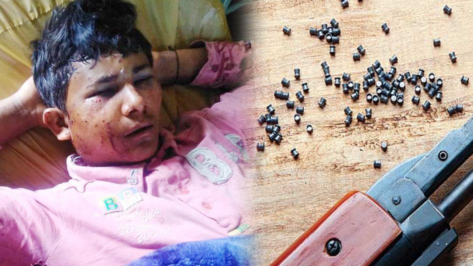 کشمیر: پیلٹ گن کا نشانہ بننے والا بہار کا کمسن مزدور بینائی سے محروم