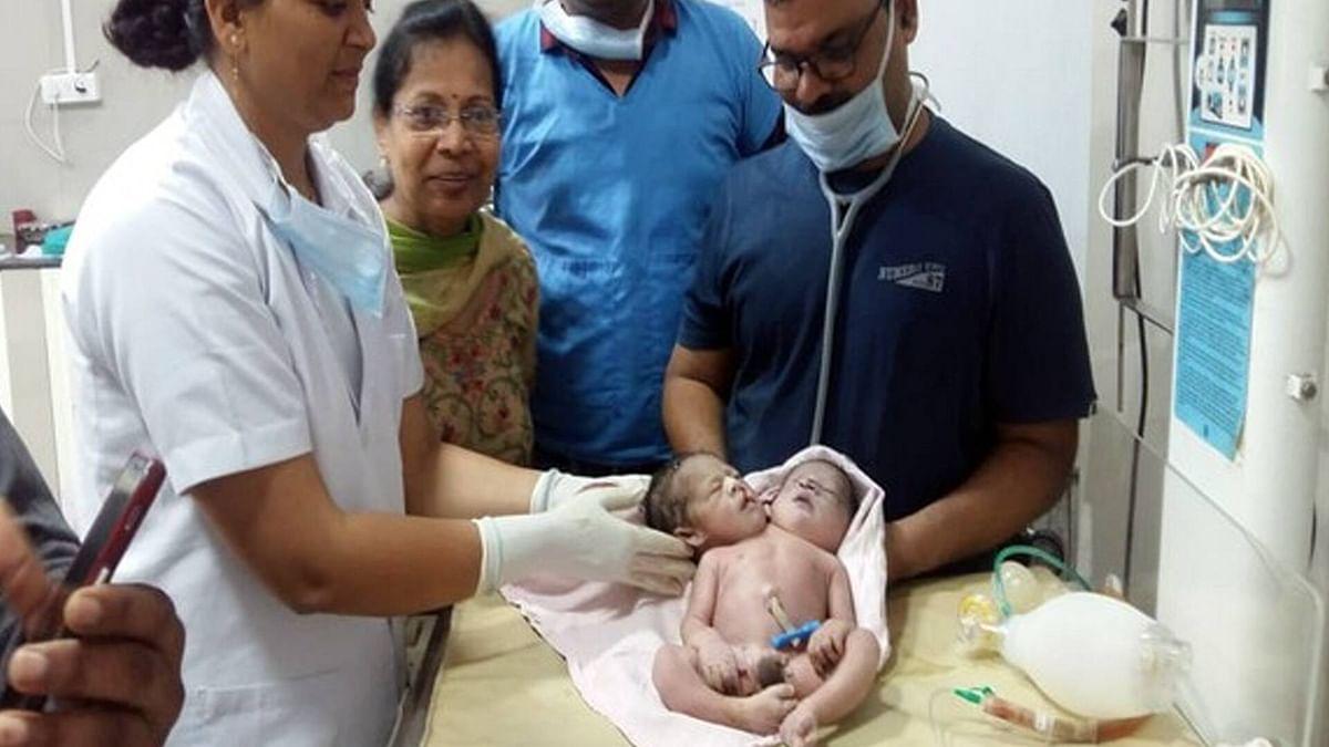 مدھیہ پردیش میں ہوئی 2 سر، 3 ہاتھ اور 4 پنجے والے بچے کی پیدائش، ڈاکٹرس حواس باختہ