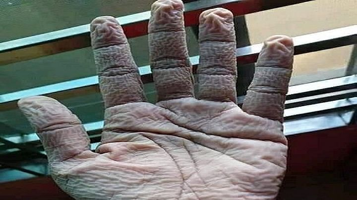کورونا: 10 گھنٹے ڈیوٹی کے بعد ڈاکٹر نے اتارے دستانے، ہاتھوں میں پڑ گئیں جھریاں