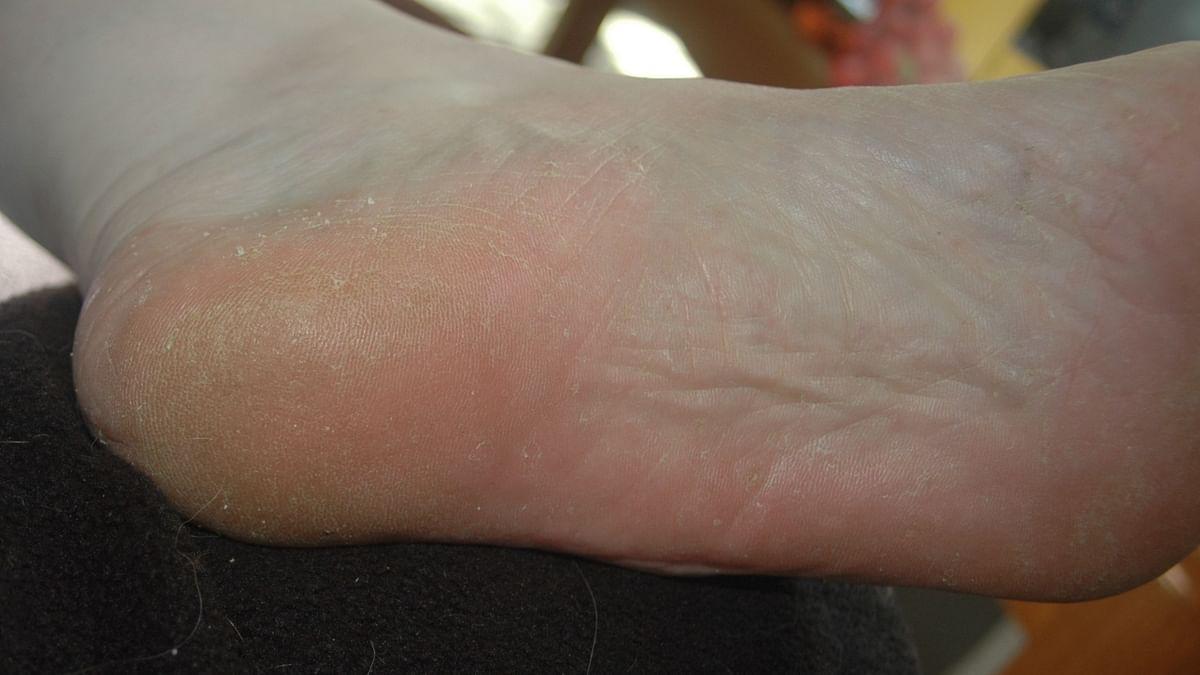 स्किन फंगल इंफेक्शन के आसान उपचार - Skin Fungal Infection Ke Aasan Upchar