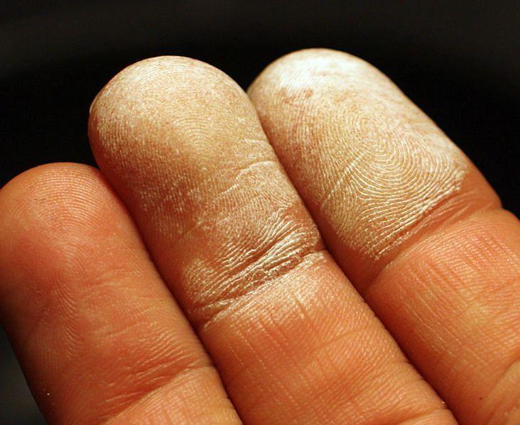 स्किन ब्लीचिंग के फायदे एवं आवश्यक बातें - Skin Bleaching Ke Fayede Aur Awashyak Baatein