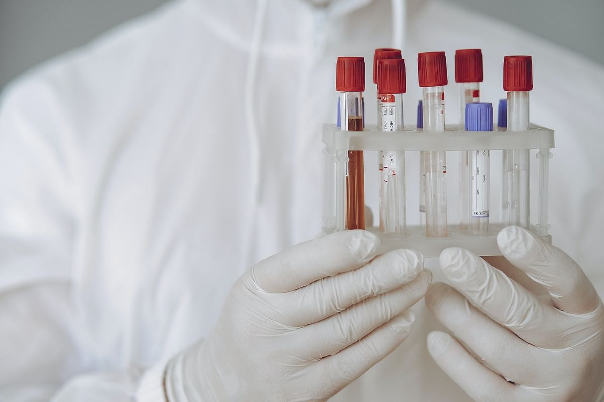 पुरूष मूत्र नमूना (शुद्ध जांच) - Urine Sample Male Test in Hindi