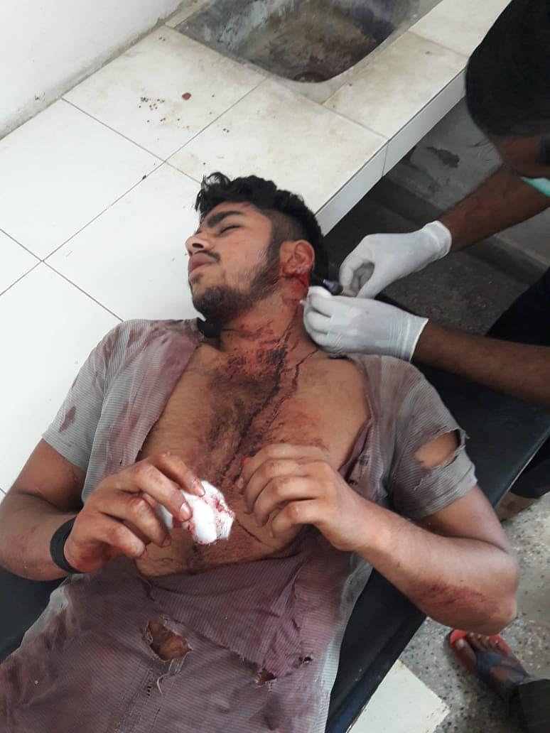 बागपत : सिरसली गांव में दो पक्षो में खूनी संघर्ष, सात घायल