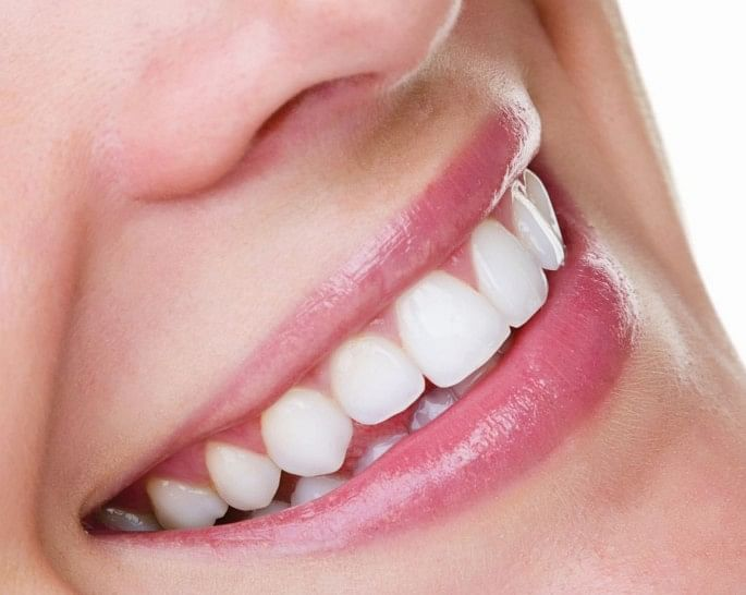 अब इन 5 घरेलू उपायों से होंगे आपके दांत सफेद