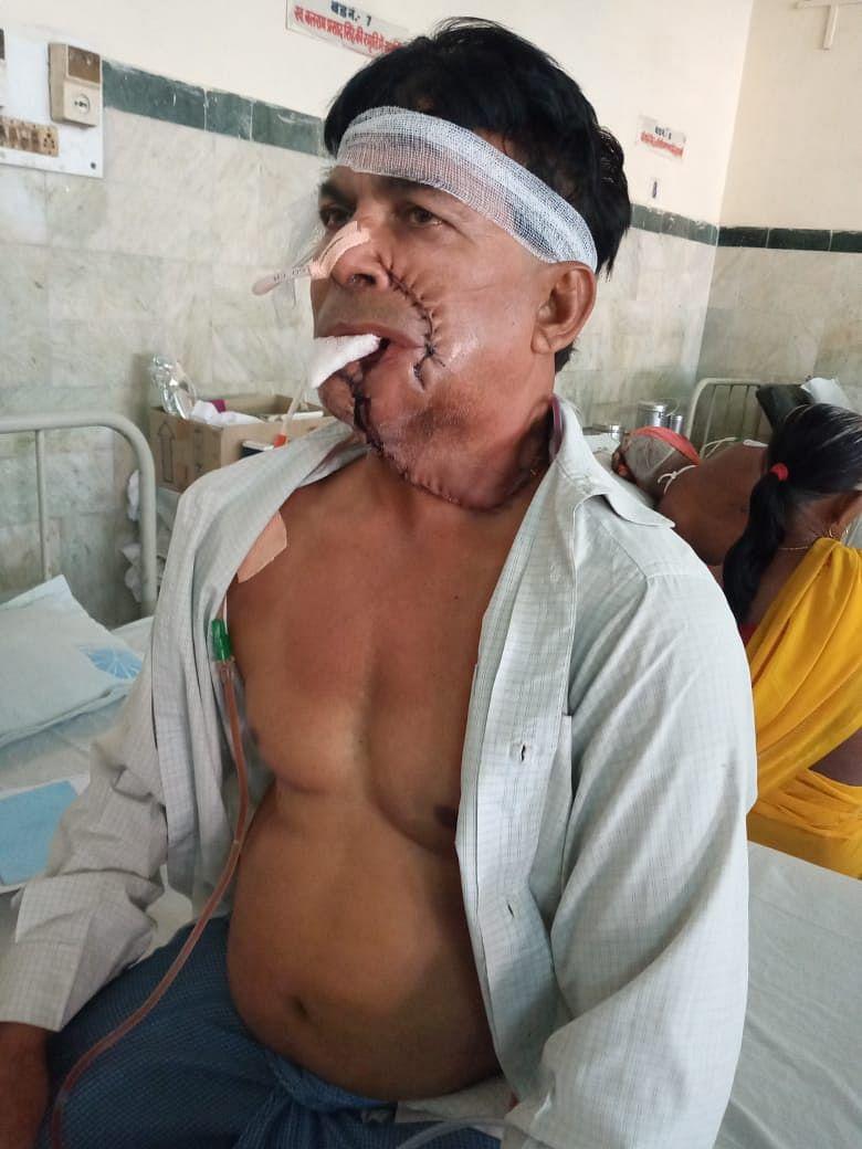 कैंसर से जंग लड़ रहे अरुण के लिए संजीवनी साबित हुई आयुष्मान योजना