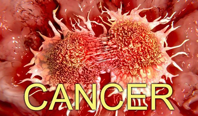 These five types of cancer make women vulnerable, know about them