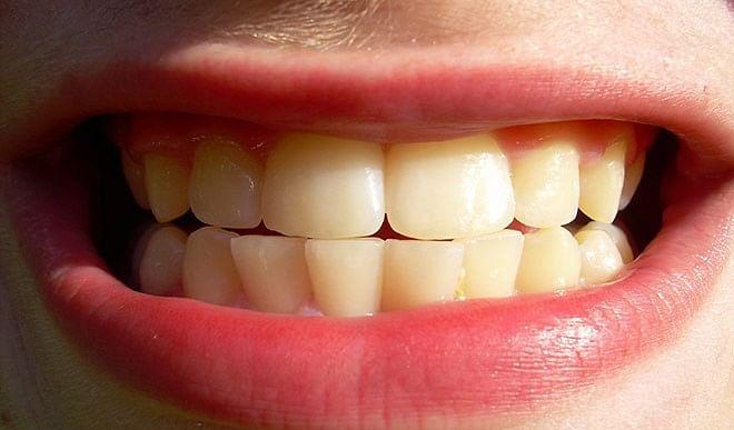 आयुर्वेदिक तरीके से करें दांतों की सफाई, डेंटिस्ट के पास जाने की नहीं पड़ेगी जरूरत